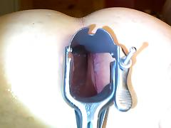 First attemp anal speculum deep asshole